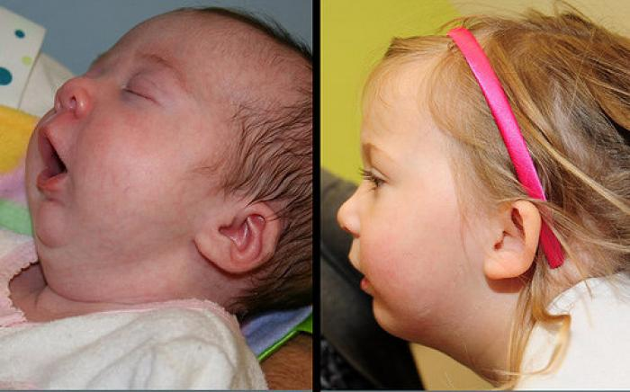 Child born with a very small jaw and needed jaw surgery