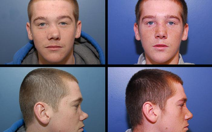 18 year old male with severe nasal deformity due to an injury when he was an infant. He had reconstruction of his nose with a bone graft to reshape his nasal structure. This procedure was far more extensive than the typical rhinoplasty.