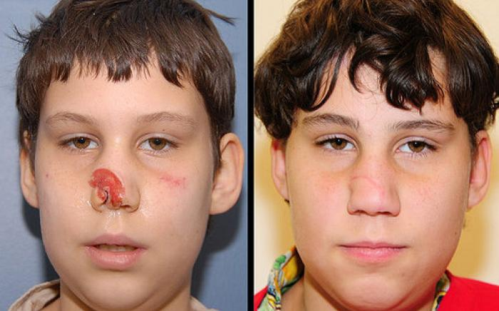 11 year old male who had lost part of his nose from an animal bite. The missing tissue was reconstructed with 3 surgeries where skin was brought over from his forehead for reconstruction. The picture on the right shows his appearance 1 year after reconstruction.