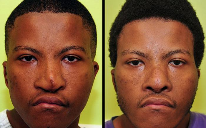 This 17 year old male was born with a severe nasal deformity. Despite previous reconstruction, he continued to have an abnormal of the nose. He had nasal reconstruction performed to improve his appearance and breathing.