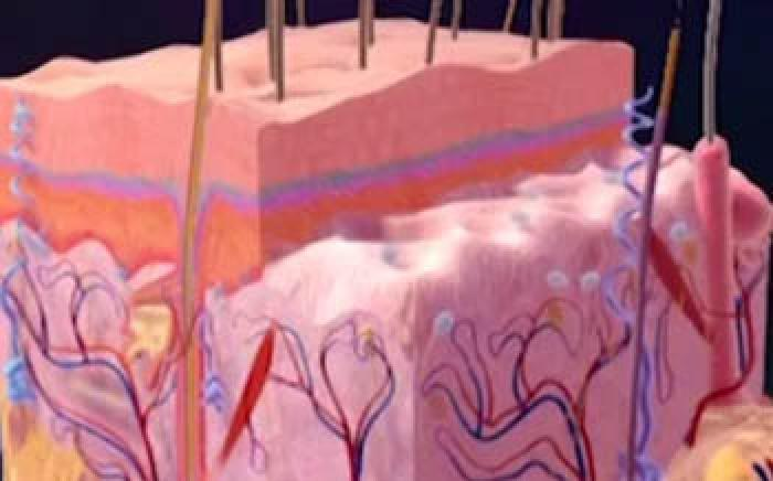 Medical Animation: Acne