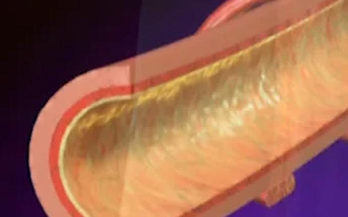 Medical Animation: Bronchitis