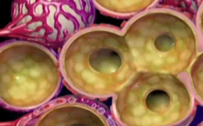 Medical Animation: Pneumonia
