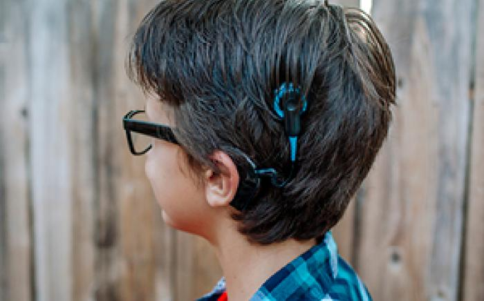 Cochlear Implants: A Viable Option for Children With Single-Sided Deafness